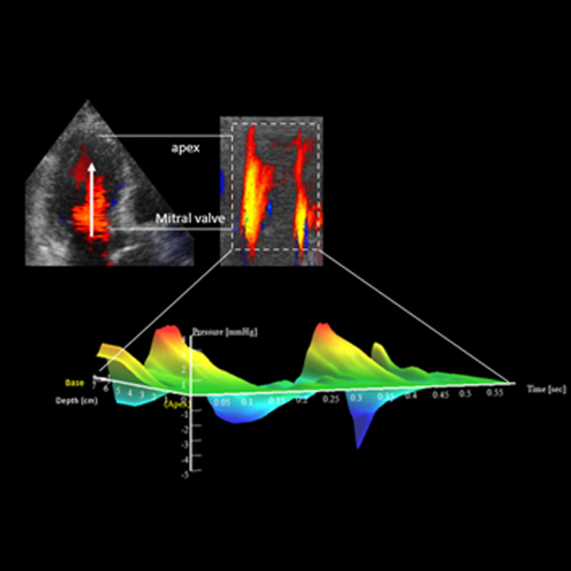 Visualize and quantify intraventricular pressure differences
